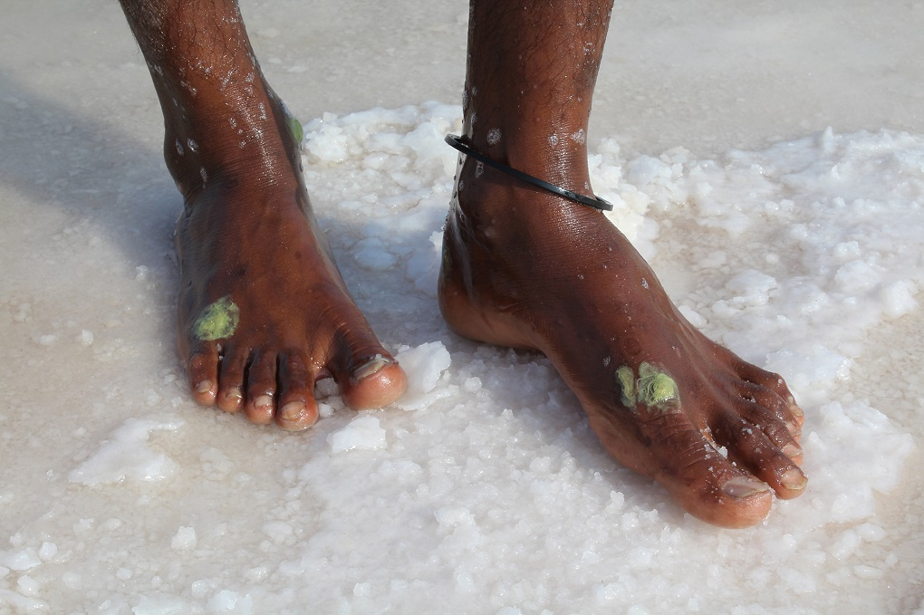 A worker which has been injured in the salt lake shows their wounds covered in a green glue to prevent salt from entering wounds.