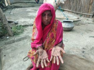 Indu Devi, 35, of Chapar village of Moinuddinagar block in Samastipur district of Bihar. She is suffering from lesions on her hands and feet but she never bothered to find out how they appeared. She said these don't itch, so she didn't think they need to be treated [image by: Umesh Kumar Ray]